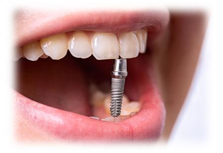 Цена на имплантацию зубов в Киеве