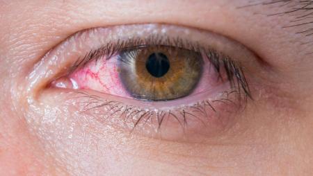 Грибковые болезни глаз